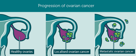stages of ovarian cancer (graphic from WOCD)